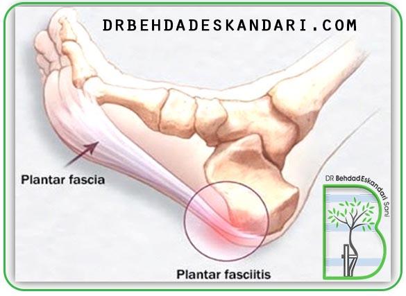پلانتار فاسیا (Plantar fascia)