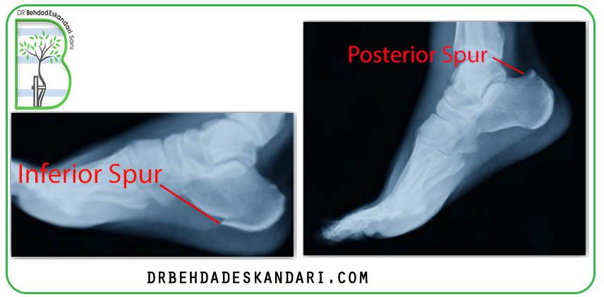 تصاویر رادیوگرافی می تواند خار پاشنه پا از هر دو نوع را نشان دهد