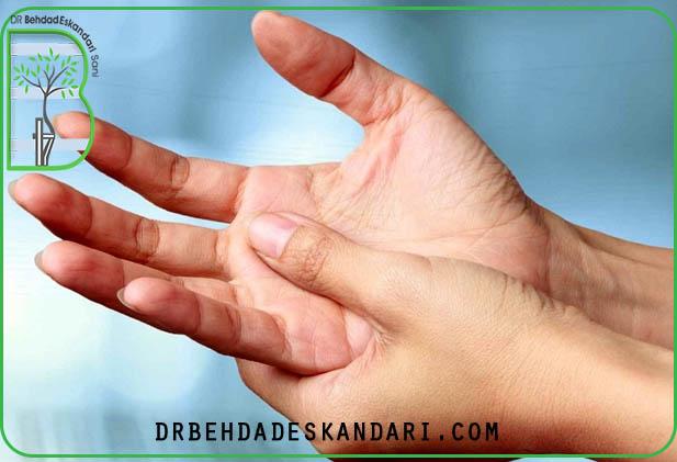 التهاب مفاصل دست