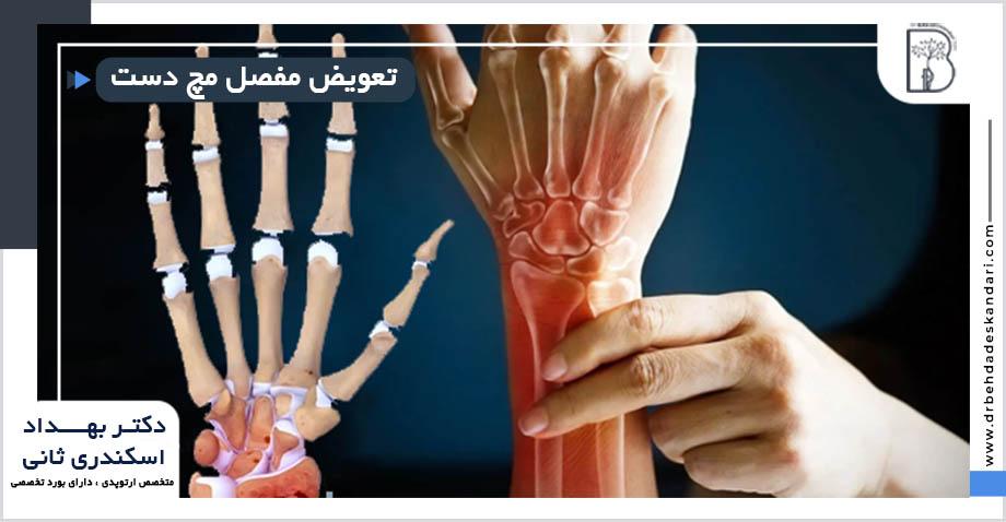 تعویض مفصل مچ دست(استئوآرتریت) در شیراز