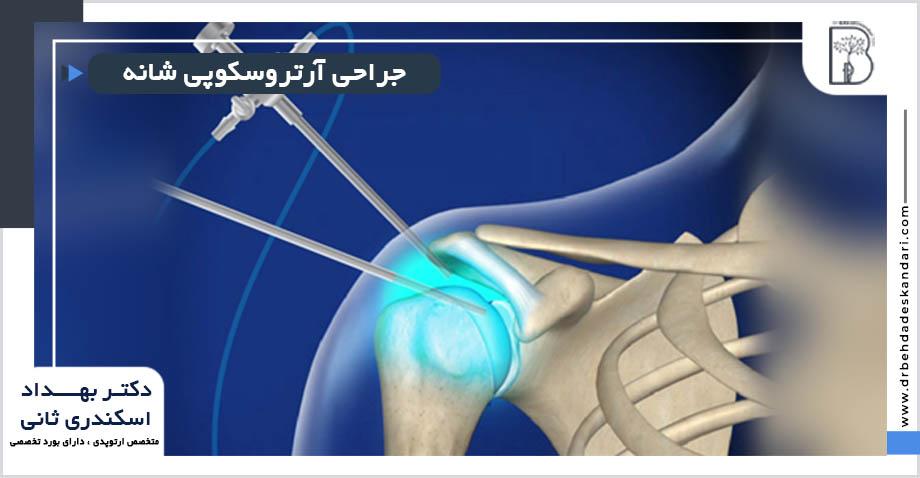 جراحی آرتروسکوپی شانه در شیراز